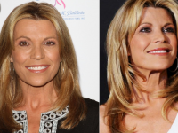 Plastic Surgeries Done Right Vanna White Plastic Surgery Before and After Picture